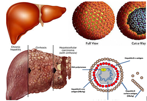 Các bệnh lý về gan có thể gây nên tình trạng albumin thấp
