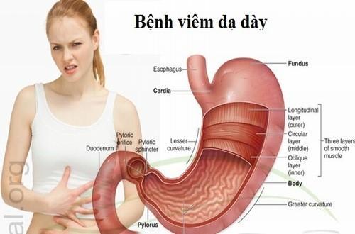 Viêm dạ dày, viêm túi mật,,... là nguyên nhân gây nên tình trạng ăn xong buồn nôn
