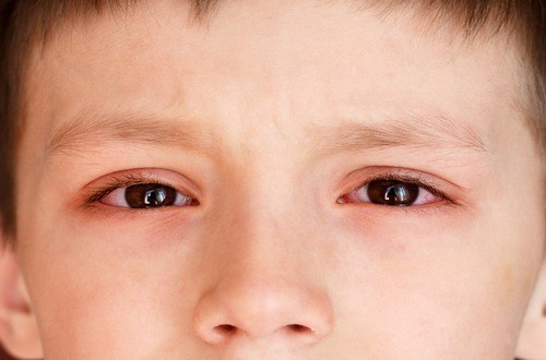 Bệnh đau mắt đỏ thường lây nhiễm qua đường hô hấp