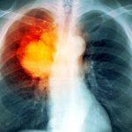 Bệnh lao phổi có nguy hiểm không?