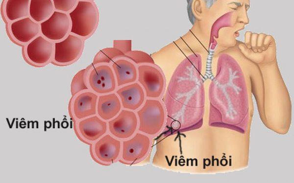benh-viem-phoi-1
