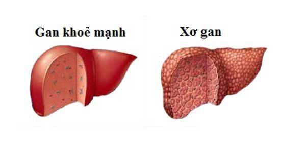bien-chung-cua-xo-gan-1