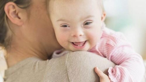 Bệnh Down  dẫn đến những thay đổi trong sự phát triển và biểu hiện thể chất.