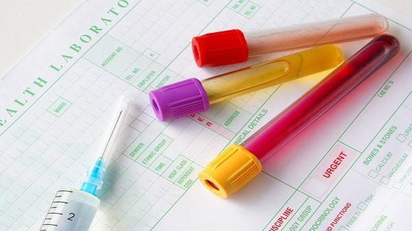 Đi tiểu ra máu có thể là dấu hiệu cảnh báo ung thư bàng quang