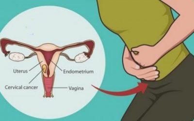 Độ tuổi nào dễ bị ung thư cổ tử cung?
