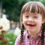 Hội chứng down ở trẻ