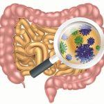 Nguyên nhân và cách phòng ngừa bệnh nhiễm trùng đường ruột