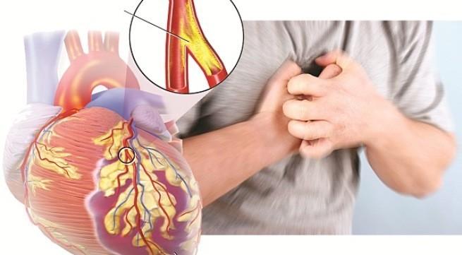 Từ A – Z những điều cần biết về bệnh động mạch vành