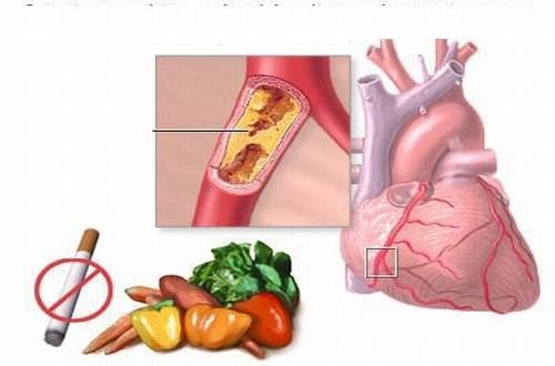 Hút thuốc lá làm tăng nguy cơ gây xơ vữa động mạch