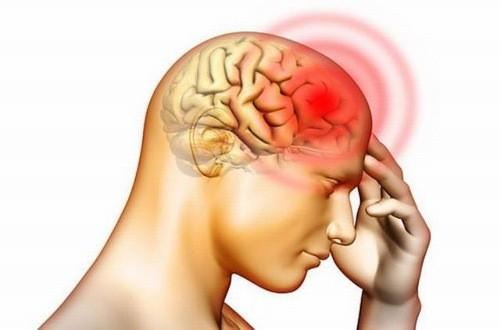 Thoát vị đĩa đệm cột sống cổ có thể gây tình trạng đau đầu, thiếu máu lên não