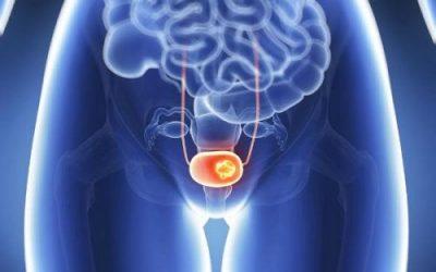 Tìm hiểu bệnh ung thư bàng quang