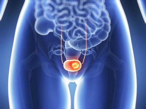 Ung thư bàng quang là bệnh lý ác tính bắt nguồn từ khối u trong bàng quang – cơ quan hình cầu ở vùng xương chậu, nơi chứa nước tiểu