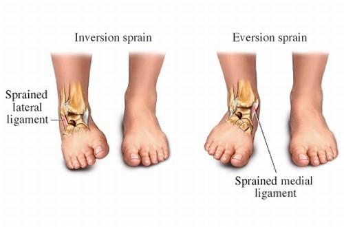 Trật khớp cổ chân gây đau, sưng tím khớp cổ chân, ảnh hưởng đến khả năng vận động