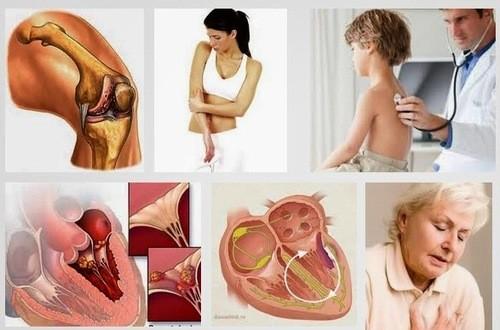 Bệnh thấp khớp cấp thường xuất hiện ở trẻ  cần được phát hiện sớm và điều trị kịp thời hiệu quả