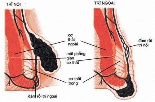 Đau rát vùng hậu môn,  ngứa, chảy máu hậu môn,... là những triệu chứng bệnh trĩ thường gặp