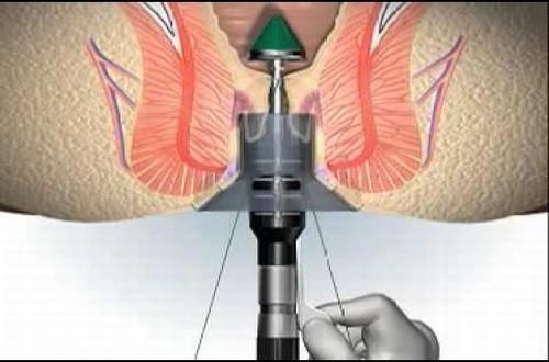 Phẫu thuật cắt trĩ longo là phương pháp tối ưu trong điều trị bệnh trĩ hiệu quả
