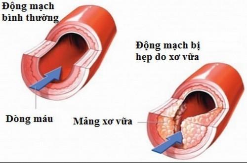 Xơ vữa động mạch có thể gây nên các triệu chứng đau thắt ngực thiếu máu cơ tim,...