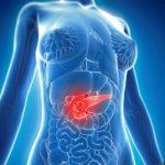 Ung thư tuyến tụy sống được bao lâu?
