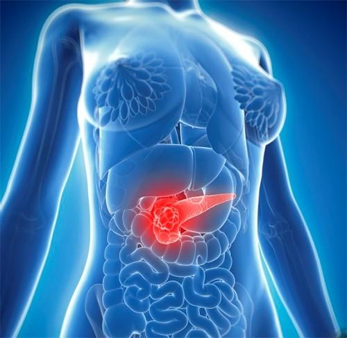 Khoảng 10% ca mắc ung thư tuyến tụy có liên quan đến yếu tố di truyền