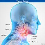Ung thư vòm họng có thể sống được bao lâu?