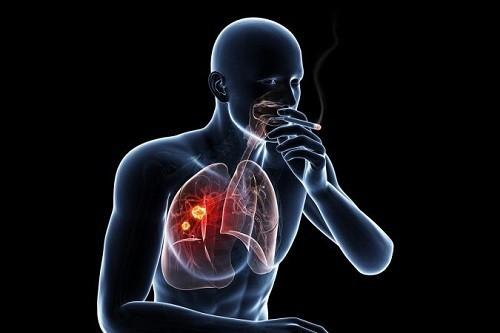Khoảng trên 90% bệnh nhân ung thư phổi có liên quan đến khói thuốc lá và đây cũng là nguyên nhân gây 80% ca tử vong do bệnh gây ra