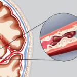 Chảy máu não có nguy hiểm không?