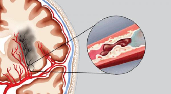 Chảy máu não là biến chứng nghiêm trọng đe dọa tính mạng người bệnh nếu không được cấp cứu kịp thời
