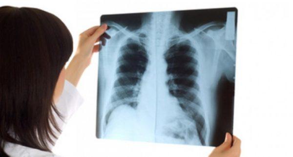 Chụp CT có cản quang giúp chẩn đoán chính xác bệnh lý