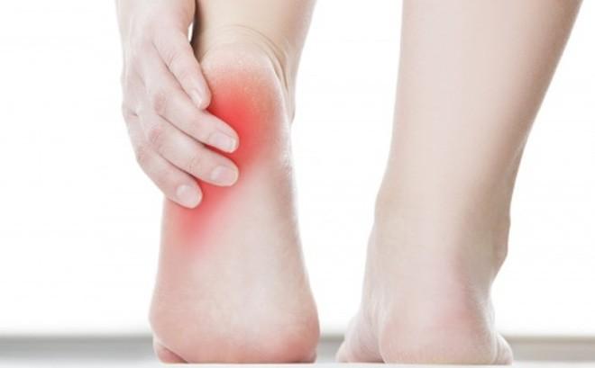 Đau gót chân có thể là dấu hiệu của các bệnh lý như gai