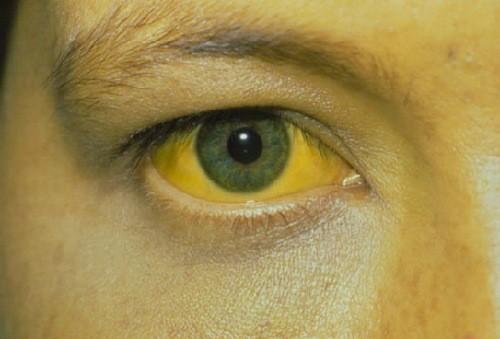 Vàng da, vàng mắt do bilirubin tích tụ cùng là dấu hiệu cảnh báo ung thư gan không nên bỏ qua