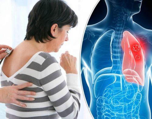 Đau sau lưng vùng phổi cũng có thể liên quan đến ung thư phổi