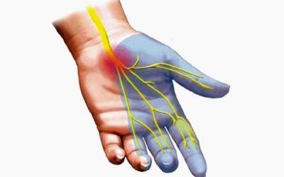 Hội chứng ổng cổ tay – Nguyên nhân và triệu chứng