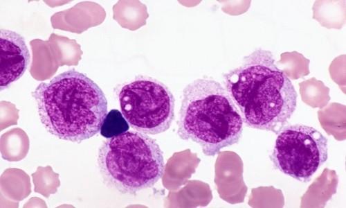 Mắc bệnh đa u tủy xương sống được bao lâu - Các yếu tố ảnh hưởng