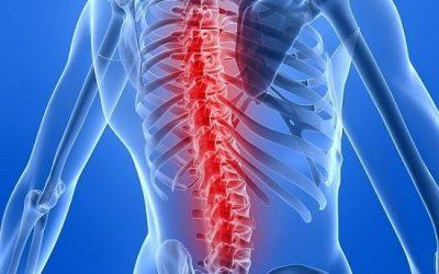 Mắc bệnh đa u tủy xương sống được bao lâu?