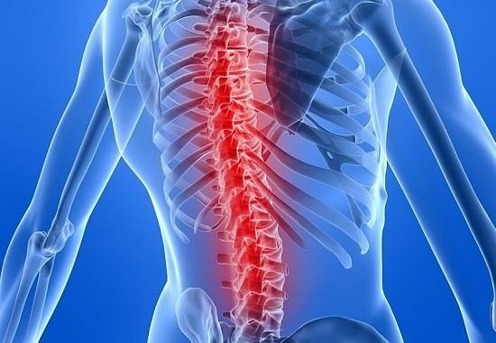 Mắc bệnh đa u tủy xương sống được bao lâu - Biểu hiện