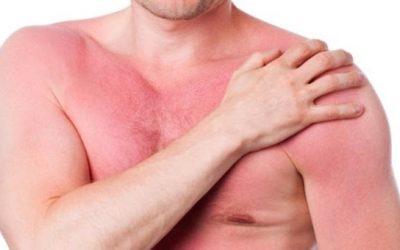 Nguyên nhân gây nóng gan và những lưu ý trong chế độ dinh dưỡng