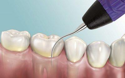 Những điều cần lưu ý khi lấy cao răng