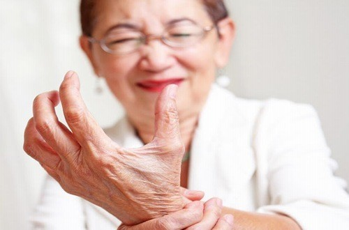 Phụ nữ bị bệnh gout thường nghiêm trọng hơn nam giới
