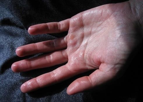 Thường xuyên bị ra mồ hôi toàn thân, đặc biệt ở vùng lòng bàn chân, bàn tay là một biểu hiện của chứng rối loạn thần kinh thực vật