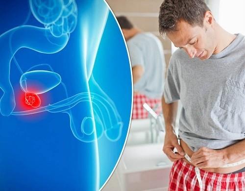 Ung thư tuyến tiền liệt là bệnh ung thư khá phổ biến ở nam giới