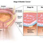 Ung thư bàng quang có chữa được không?