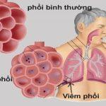 Viêm phổi kẽ nguy hiểm không?
