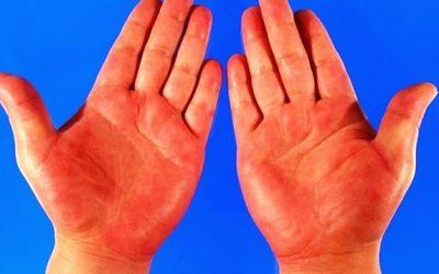 5 dấu hiệu cảnh báo bệnh từ chính đôi bàn tay của bạn