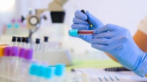 Khi đã biết chính xác bản thân nhiễm virus viêm gan C, người bệnh cần phải điều trị ngay để ngăn ngừa các biến chứng nguy hiểm có thể xảy ra.