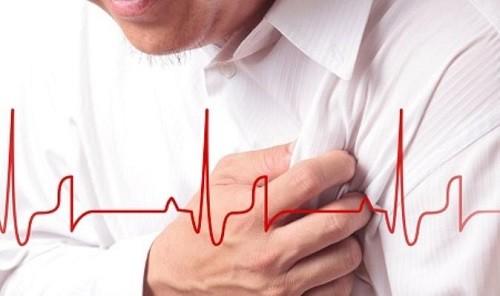 Đau thắt ở tim là tình trạng xảy ra thường do tắc nghẽn lưu thông mạch máu gâythiếu máu cục bộởcơ tim hoặc do sự co thắt củađộng mạch vành.