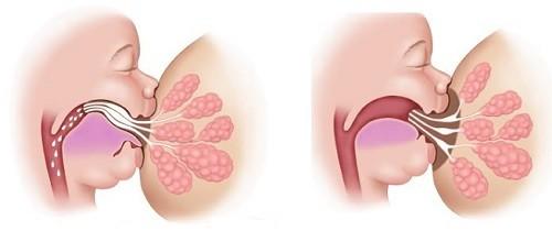 Nếu tình trạng dính thắng lưỡi gây ra các tác hại cho sinh hoạt, sức khỏe của trẻ, cha mẹ nên điều trị cho trẻ càng sớm càng tốt.Bé cần phải được tiểu phẫu để cắt bớt phần dính.Thông thường, các bác sĩ cắt một phần thắng lưỡi bằng kéo vô trùng hoặc tia laser. Đây là một kỹ thuật đơn giản, an toàn và không phức tạp. Phẫu thuật này diễn ra nhanh chóng và hiếm khi gây ra các biến chứng. Đôi khi trẻ không cần được gây tê và không bị chảy máu, hoặc chỉ mất vài giọt nhỏ, bởi vùng thắng lưỡi ít có dây thần kinh và ít mạch máu. Sau khi phẫu thuật chỉvài phút, trẻ đã có thể bú sữa mẹ bình thường.