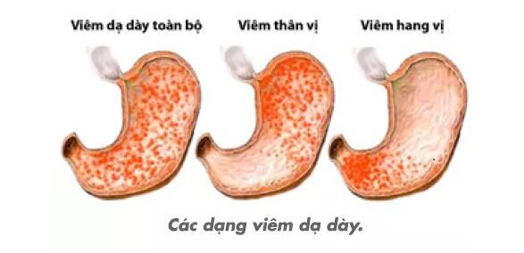 nguyen-nhan-trieu-chung-viem-hang-vi-da-day-1