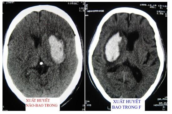 Do tính chất nghiêm trọng của loại bệnh này, nhiều người muốn tìm hiểu phẫu thuật xuất huyết não có hiệu quả không?