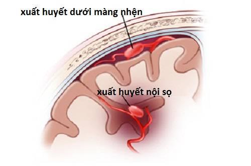 Nguyên nhân đầu tiên và phổ biến nhất gây xuất huyết não là tình trạng chấn thương sọ não.