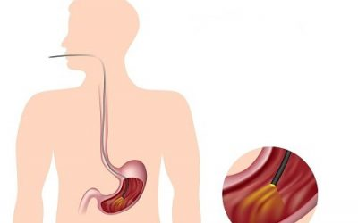"""""""Tất tần tật"""" thông tin về nội soi dạ dày"""